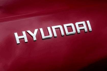 2018 Hyundai Kona Electric - UK version 123
